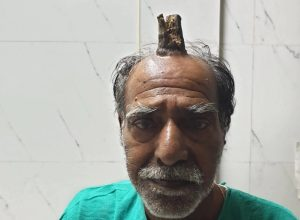 74ఏళ్ల వ్యక్తి తల పై పెరిగిన'దయ్యం కొమ్ము'..!