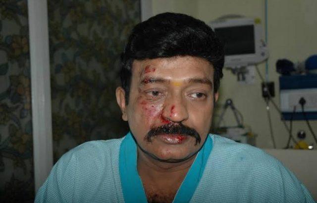 హీరో రాజశేఖర్ కారు యాక్సిడెంట్కు కారణాలివే.!